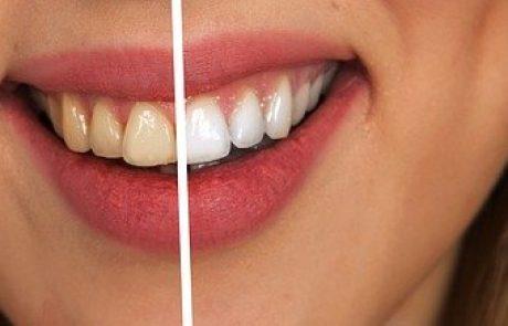 איך לנצח כאבי שיניים?